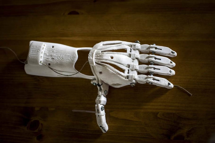 3D-printed Prosthetic